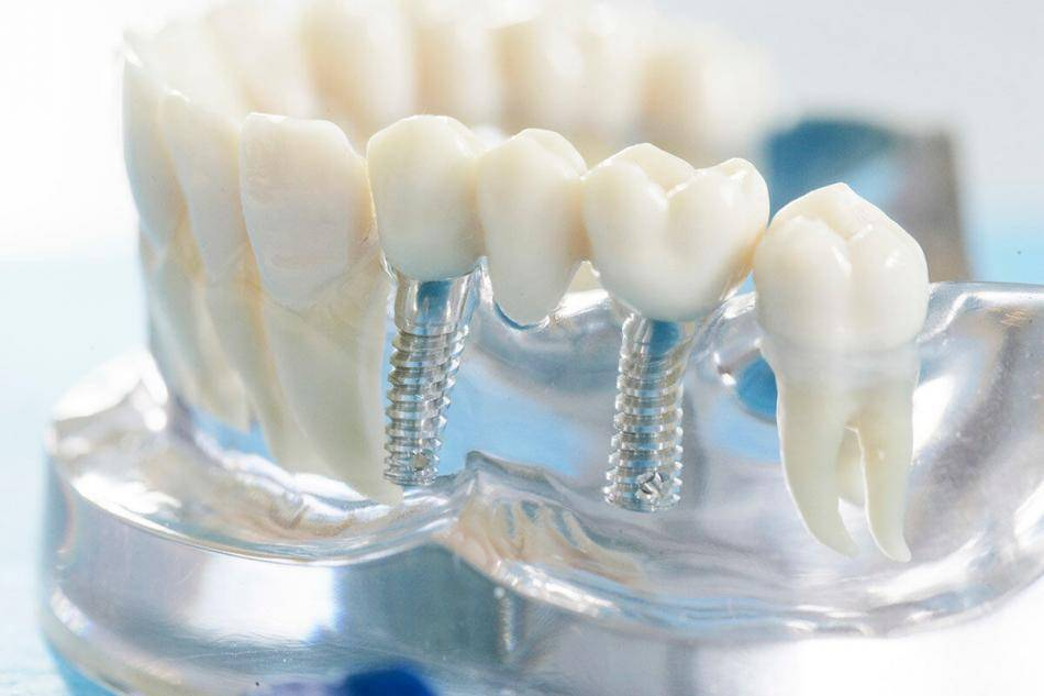 All You Need To Know About Dental Crowns And Bridges In Yagoona